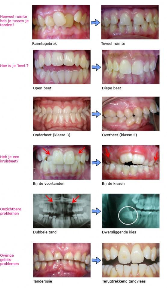 orthodontische problemen